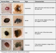 Top 11 Doctor Insights on freckle vs mole - HealthTap