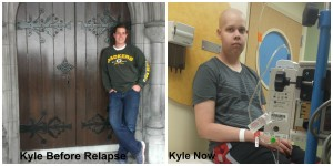 kyle cancer before and after